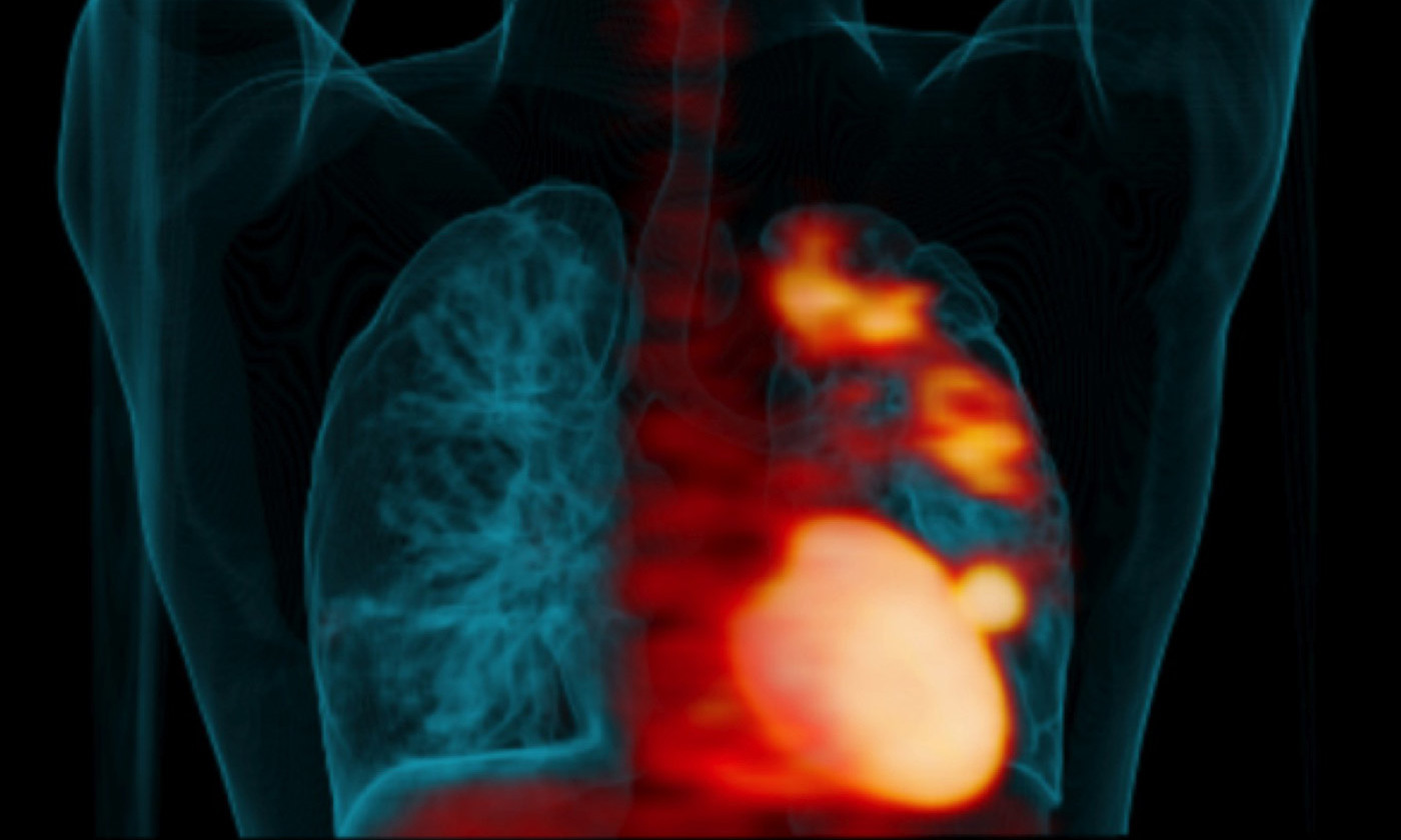 Lung scan showing 'hot spots' of TB infection<em>. Photo courtesy UPMC Pittsburgh</em>