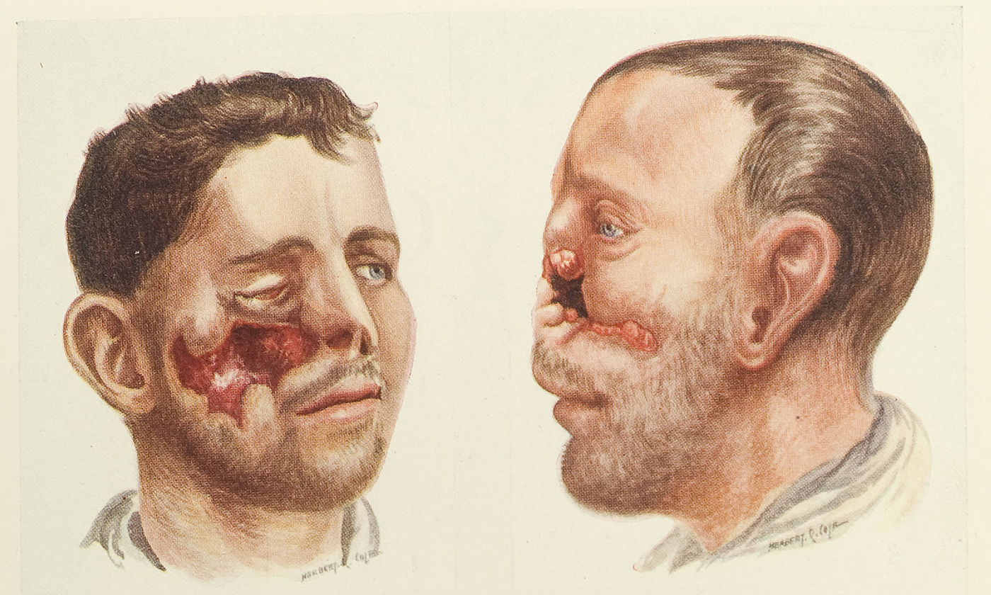 <p>Disfigured men returning from WW1 became a common sight. From H.P. Pickerill's &nbsp;<em>Facial Surgery</em> 1924/Wellcome Images</p>