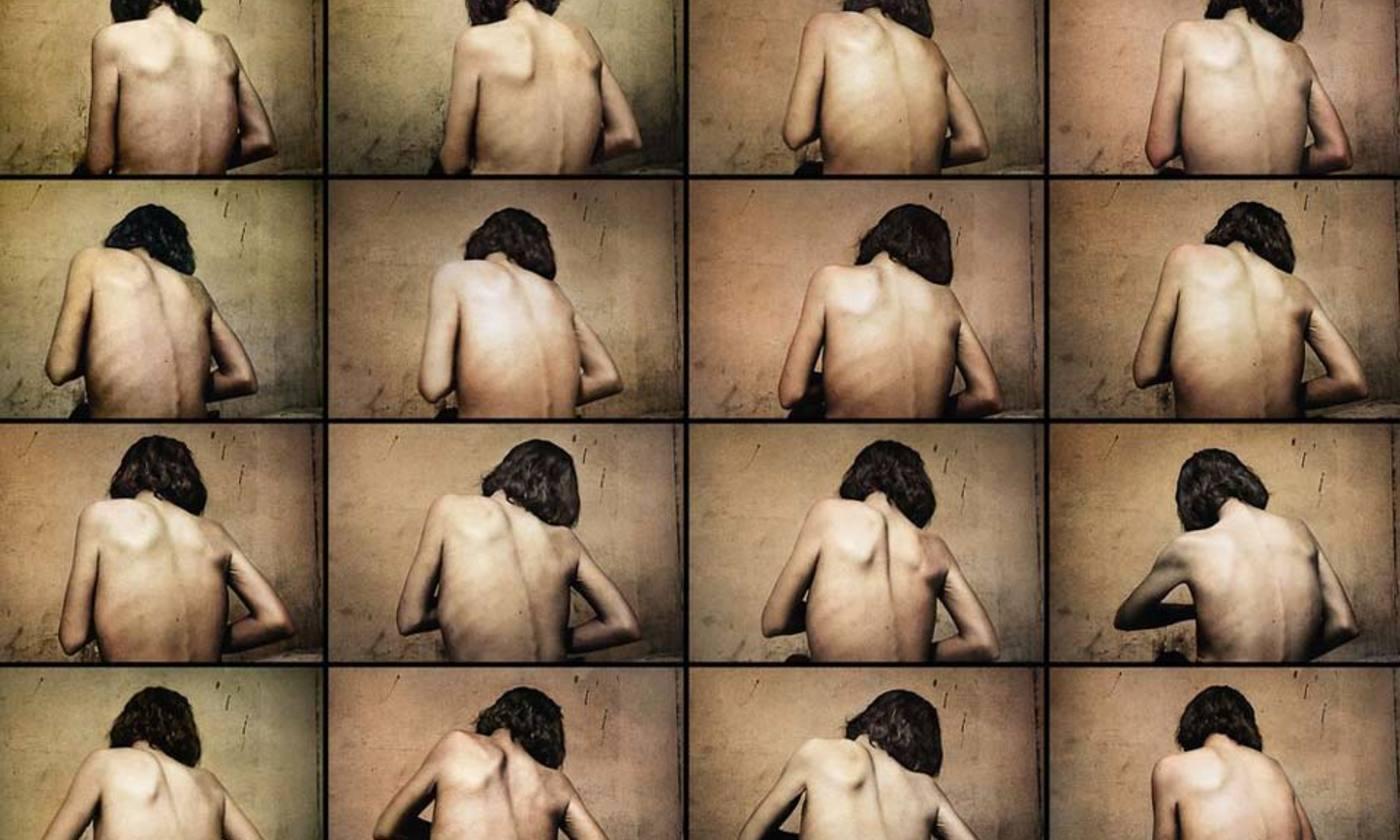 The self-starving brain | Aeon
