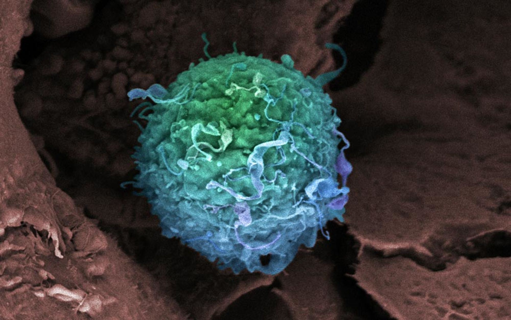 Can crowdfunding bring new cancer drugs to the market? – Alexander Masters | Aeon Essays